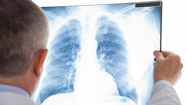 Реалізація профільної програми торік дала можливість стабілізувати ситуацію з туберкульозом на Закарпатті