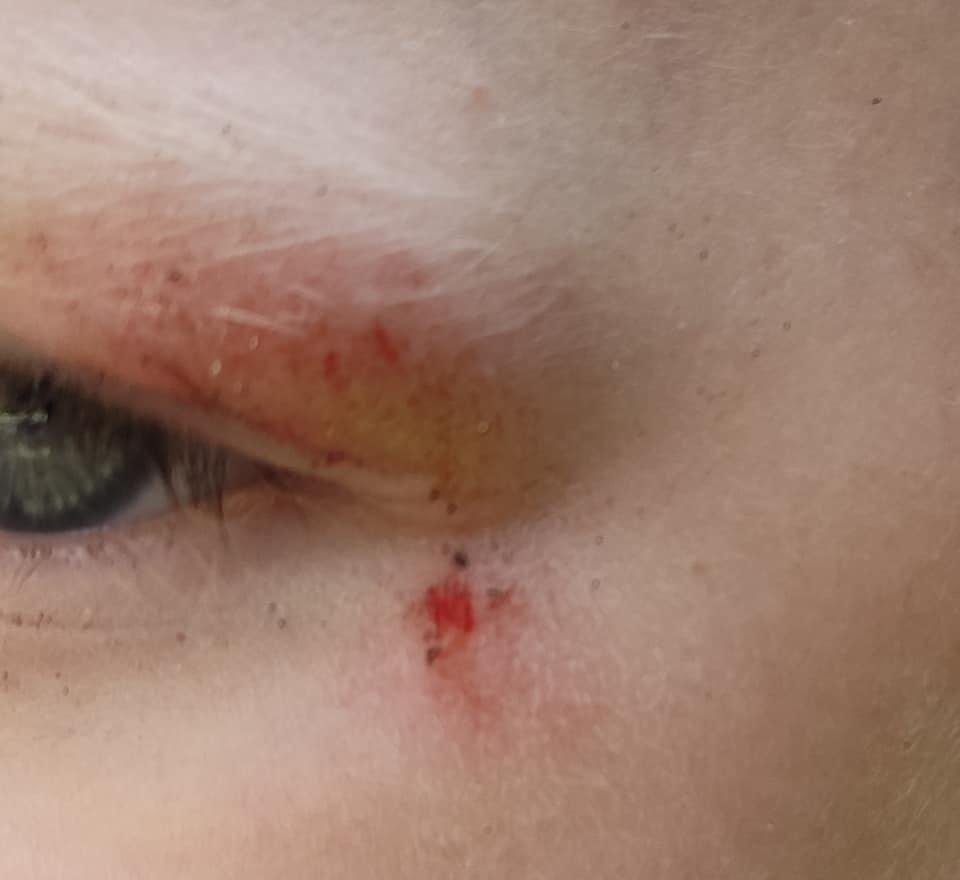 ФОТОФАКТ. На площі Петефі в Ужгороді дитина впала у відкритий люк